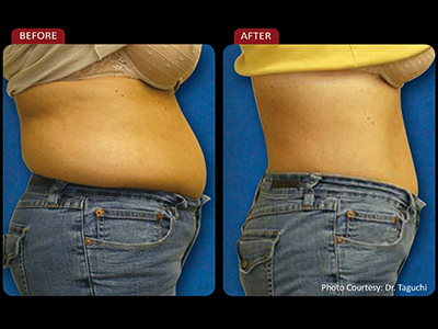 Chiropractic Beaver Dam WI Before and After Weight Loss